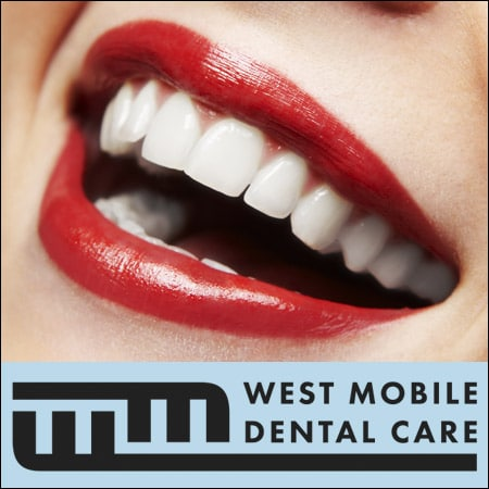 Dental_Bonding_Mobile_AL