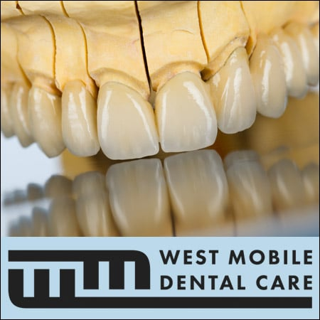 Dental_Bridge_Mobile_Alabama