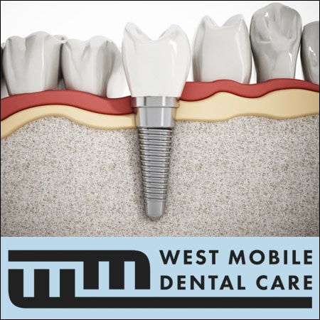 Dental_Tooth_Implants_Mobile_AL