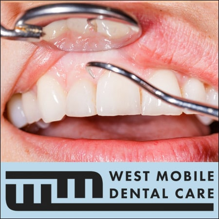 Gum_Disease_Periodontal_Treatment_Mobile_AL
