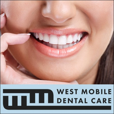 Professional_Teeth_Whitening_Mobile_AL