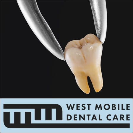Tooth_Extraction_Mobile_AL