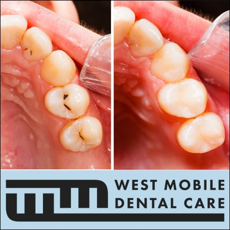 Tooth_Fillings_Mobile_Alabama